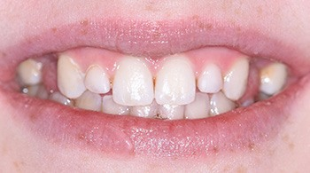 Closeup of smile with small incisors