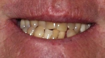 Crooked severely stained teeth