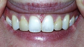 Smile with yellowed front teeth