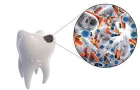 Image showing bacteria causing a cavity.