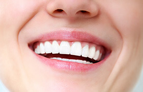 Closeup of whole healthy smile