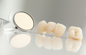 Dental crown and bridge on tray