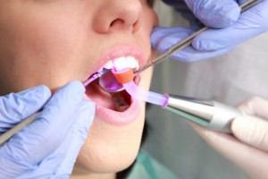 dentist using light-based therapy