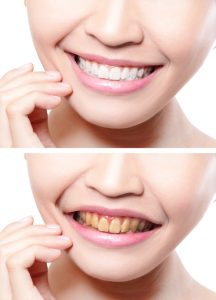 Get a whiter smile today with teeth whitening in Aurora.