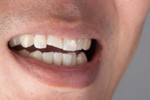 man partially smiling showing cracked tooth