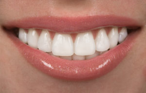 woman with perfectly white teeth