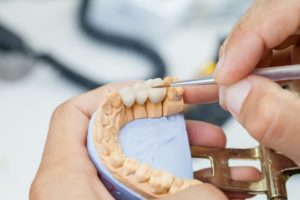 dentist in Aurora creating a dental bridge